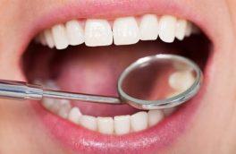 راهکارهای مبارزه با پوسیدگی دندان