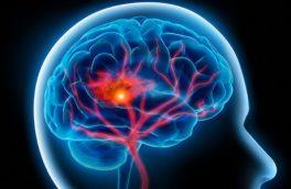 سندروم سالن زیبایی و علت عجیب سکته مغزی