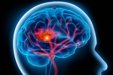بروز درد در هر نقطه سر نشانه چیست؟