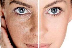 ۱۰ راهکار برای پوست درخشان و شاداب