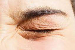 چگونگی محافظت از پوست دور چشم برای ظاهری زیبا و جوان