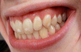 دلیل ایجاد لکههای سفید روی دندان/ راه درمان